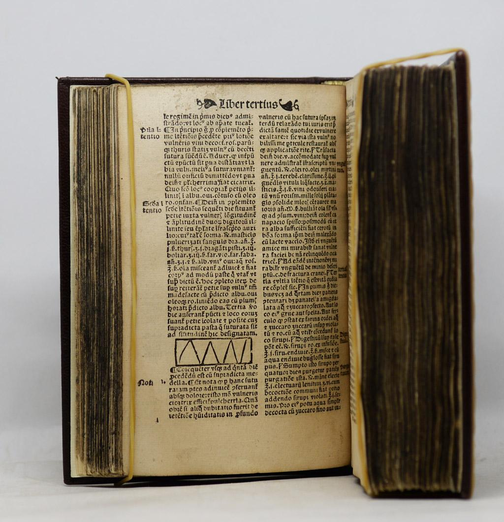 Vigo, Jean de, Opera in Chyrurgia, 1534.